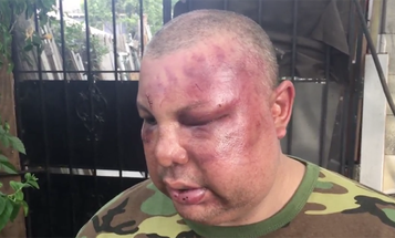 2 Cops Arrested For Beating Man After Questioning His Service In Bar