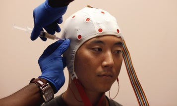What You Need To Know About TBI Treatment