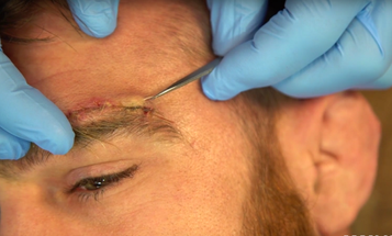 A Green Beret Demonstrates How To Remove Your Own Stitches