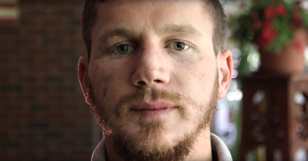 Kyle Carpenter Reflects On His Sacrifice, Hardship In Upcoming Profile