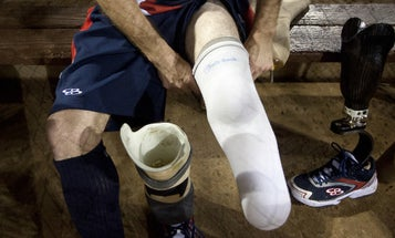 The Future Of Wounded Warrior Care Is Limb Regeneration