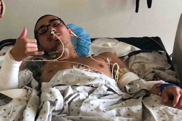 Army recruit faces long road to recovery after contracting flesh-eating disease