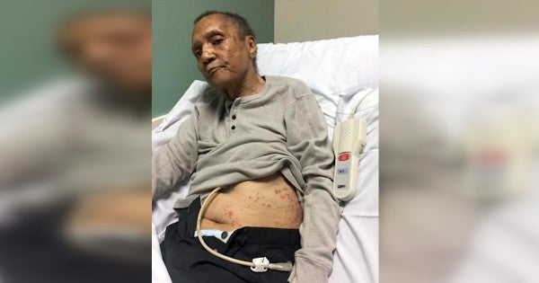 VA reassigns 9 officials after Vietnam vet found covered in ants at Atlanta VAMC