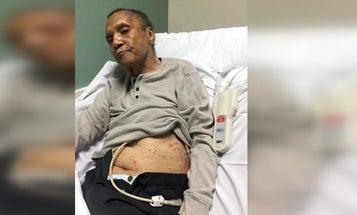 VA reassigns 9 officials after Vietnam vet found covered in ants at Atlanta VAMC