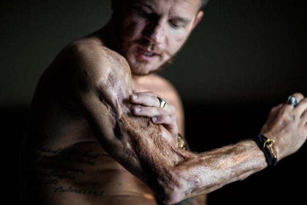 Rebuilding Honor: How Kyle Carpenter came back from the brink of death