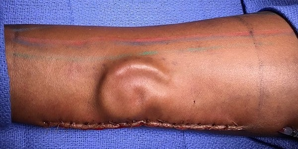A Soldier Is Getting A New Ear… Once It Finishes Growing In Her Arm