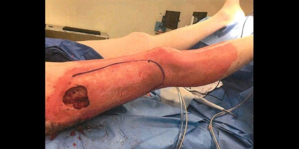 Navy Vet Sues Over E-Cig That Blew This Hole In His Leg (Graphic)